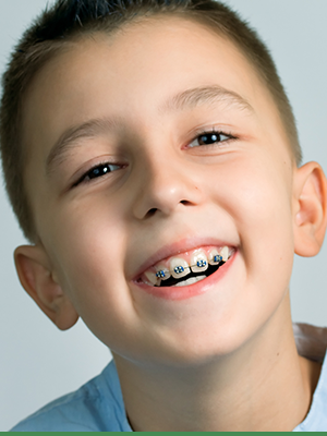 Cook Orthodontics Featured Image Braces Teeth Smile 01