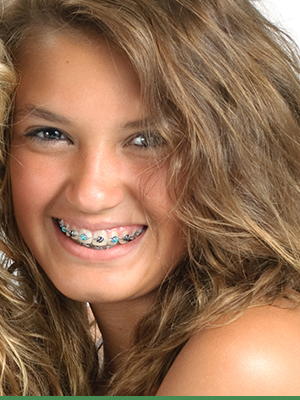 Cook Orthodontics Featured Image Braces Teeth Smile 03