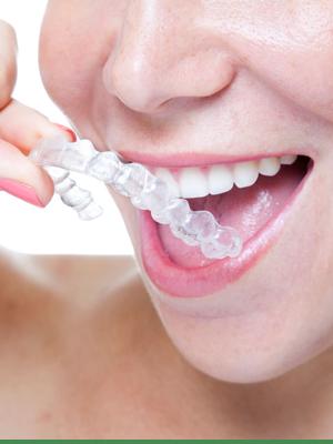 Cook Orthodontics Featured Image Braces Teeth Smile invisalign 01