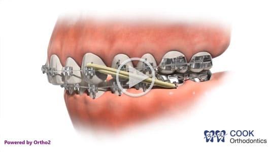 Elastics Video Cook Orthodontics Augusta ME