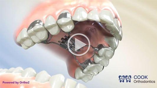 Hyrax Video Cook Orthodontics Augusta ME