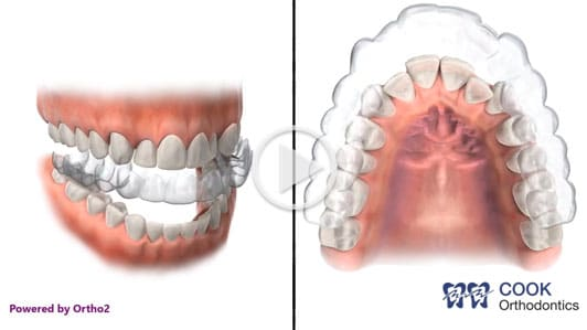 Invisalign Cook Orthodontics Augusta ME