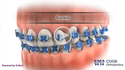 Part of braces video Cook Orthodontics Augusta ME
